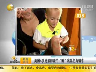 美国4岁男孩膝盖中